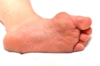 Causes and Symptoms of Bunions