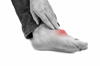 Gout Is a Form of Arthritis