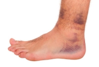 Who Is Prone to Foot and Ankle Injuries?