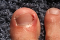 Can an Ingrown Toenail Become Infected?